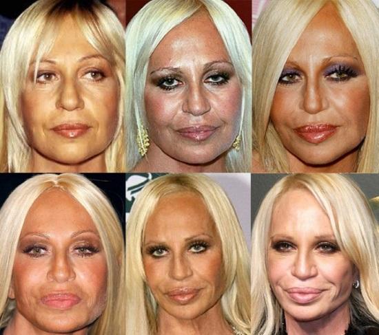 Донателла Версаче до и после операции пластики. Фото, рост, вес, биография, возраст