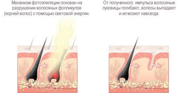 Фотоэпиляция или лазерная эпиляция, шугаринг, электроэпиляция. Что лучше, плюсы и минусы