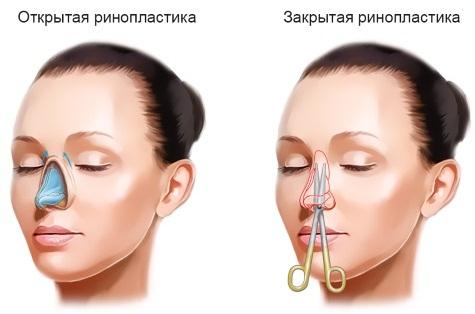 Ринопластика в Москве. Цены и отзывы по клиникам столицы