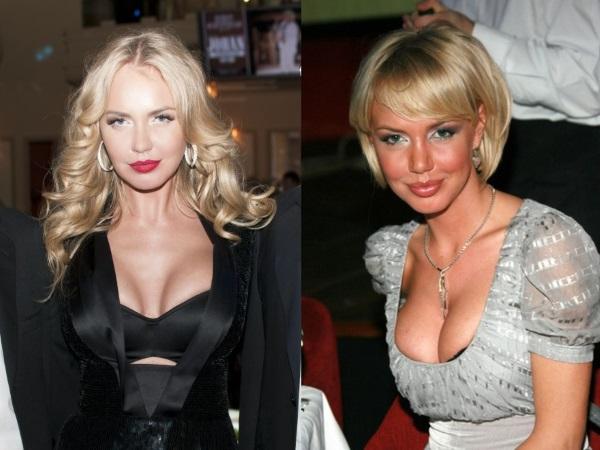 Российские актрисы с большой грудью. До и после пластики