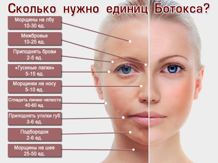 Диспорт. Что это за процедура в косметологии. Цена препарата, инструкция, противопоказания
