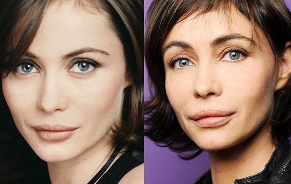 Эммануэль Беар. Фото до и после операции пластики, как изменилась французская актриса