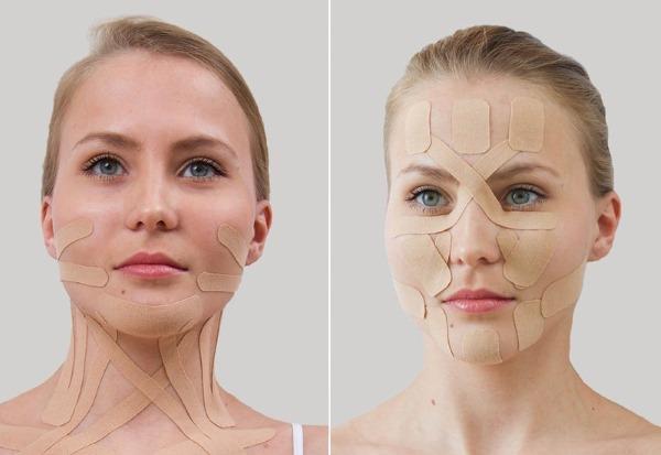 Кинезиотейпирование. Что это такое в косметологии, медицине, спорте. Тейпы, эстетическое, лимфодренажное от морщин, носогубных складок