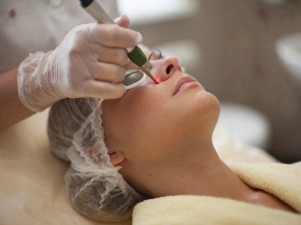 Лазерное удаление сосудов на лице в Москве: цены, запись  в клинике косметологии