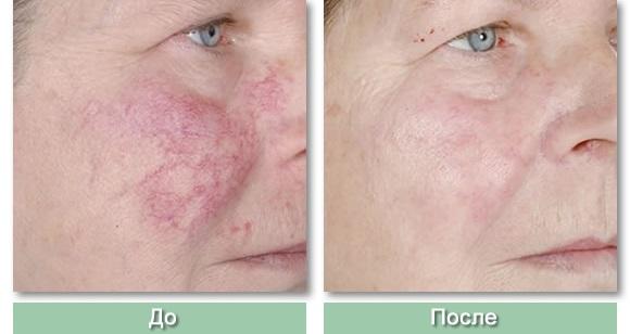 Лазерное удаление сосудов на лице неодимовым лазером, фотовспышкой, элос. фото до и после, отзывы