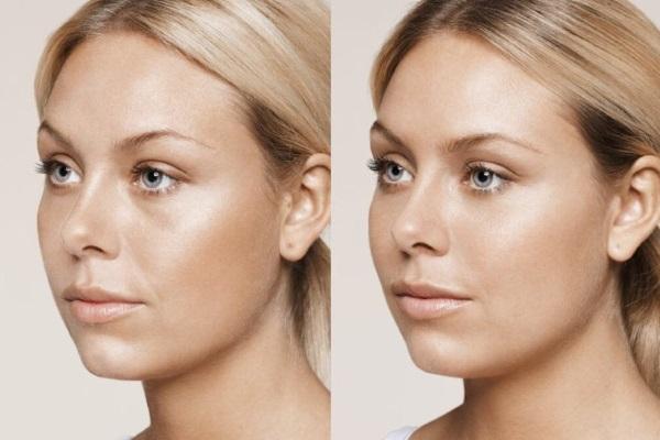 Коррекция носослезной борозды филлерами. Показания, фото до и после, цена процедуры, возможные осложнения