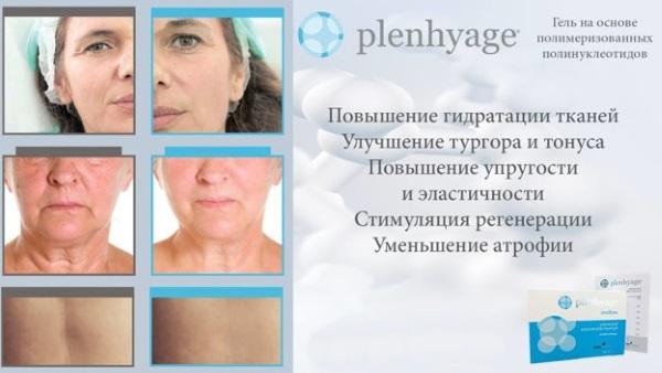 Полинуклеотиды в инъекционной косметологии. Препараты, цены, где купить