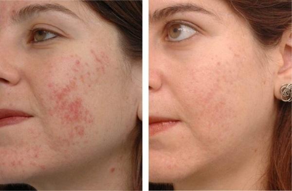 Цинковая мазь для лица от морщин в косметологии. От чего помогает, как пользоваться