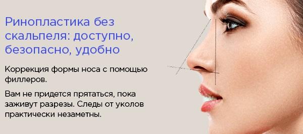 Безоперационная ринопластика кончика носа филлером, препаратами. Фото до и после, цена