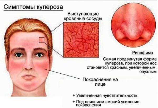 Как избавиться от купероза на лице в салоне, народные средства, мази, маски