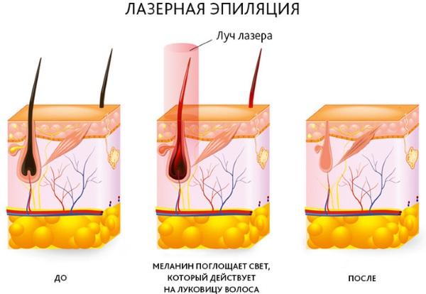 Лазерная эпиляция зоны глубокое бикини. Противопоказания, фото, цена процедуры