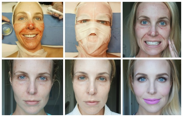 Плазменное омоложение лица. Виды процедур, аппараты, фото до и после, отзывы