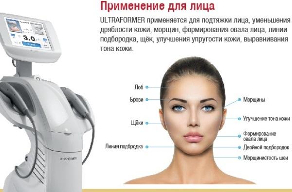 Ультраформер лифтинг для лица. Эффективность, отзывы косметологов, цена процедуры