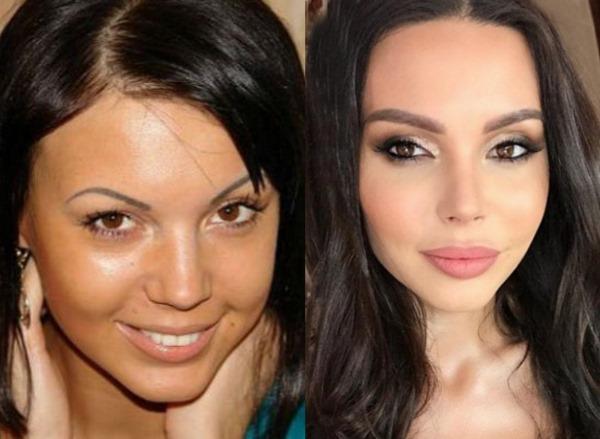 Российские актрисы до и после пластики лица. Фото