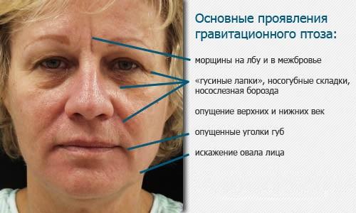 Эндоскопический лифтинг лба и бровей. Фото до и после, как выполняется, последствия, отзывы