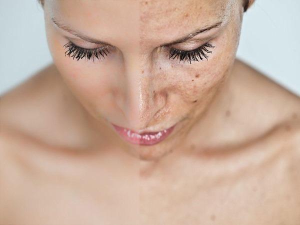Фраксель лазерная терапия кожи лица. Показания, фото до и после, отзывы