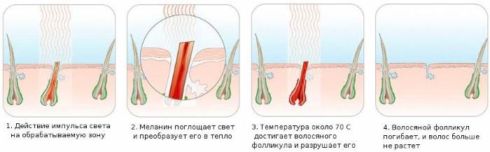 Удаление волос в зоне глубокое бикини. Шугаринг, лазерная эпиляция, депиляция воском, фотоэпиляция, электроэпиляция, биоэпиляция