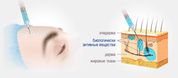 Контурная пластика носа, скул, губ, подбородка, носогубные складки. Как делается, цена, отзывы