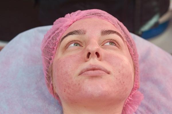 Липолитики для похудения. Противопоказания и побочные действия после процедуры на лице, животе. Отзывы