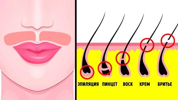 Лазерная эпиляция верхней губы (усиков) у женщин. Сколько сеансов нужно, как делается