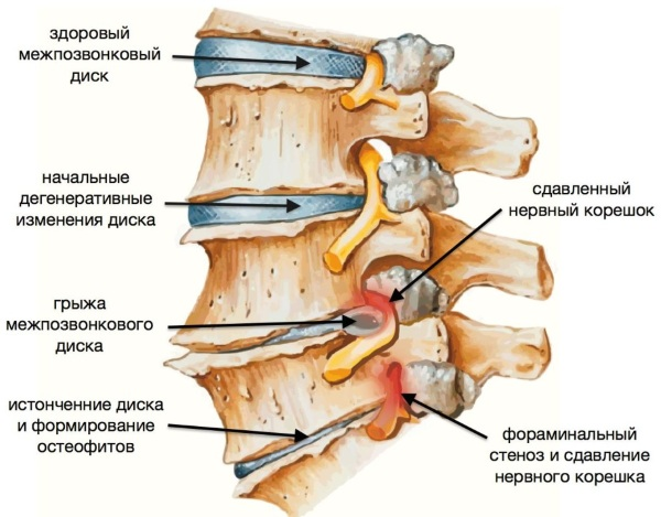 massazher-dlya-shei-i-plech-i-spiny-123