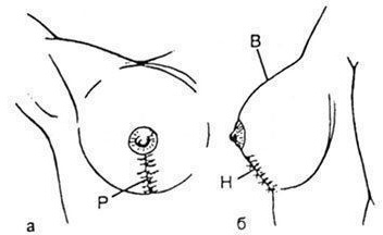 Операция по уменьшению груди маммопластика. Сколько стоит подтяжка, виды, как сделать бесплатно