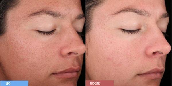 Слои эпидермиса кожи человека для косметолога. Функции, фото, описание