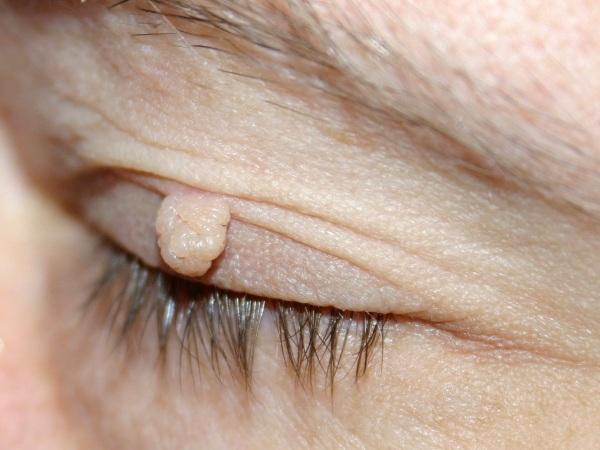 Удаление лазером новообразований на коже, наростов, папиллом. Как проходит процедура, цена, отзывы