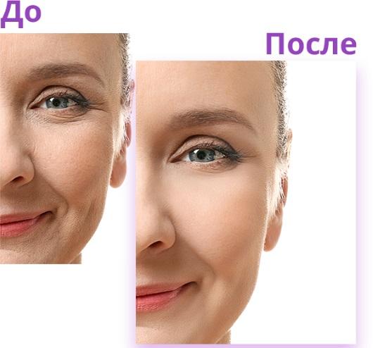 Биожени процедура для лица. Фото до и после, эффекты, цена, отзывы