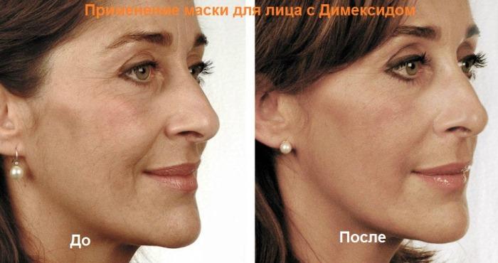 Димексид в косметологии для лица от морщин. Рецепты, способы применения