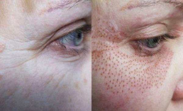 Холодная плазма в косметологии и медицине. Что это такое, фото, инъекции, лифтинг, аппараты