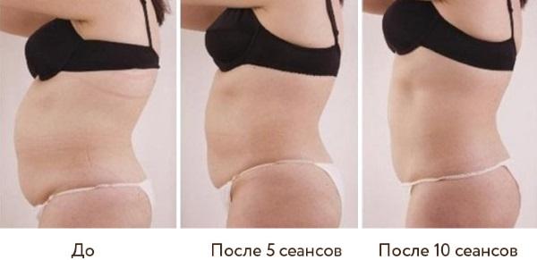Кавитация. Что это такое, фото до и после, отзывы, противопоказания