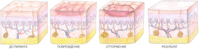 Коралловый пилинг для лица. Что это такое, фото до и после, результаты
