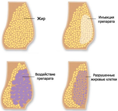 Безоперационная липосакция живота. Фото до и после лазерная, ультразвуковая, отзывы, цена