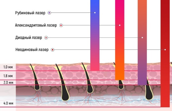 Неодимовый лазер для удаления волос на лице и теле. Фото до и после, цена, отзывы