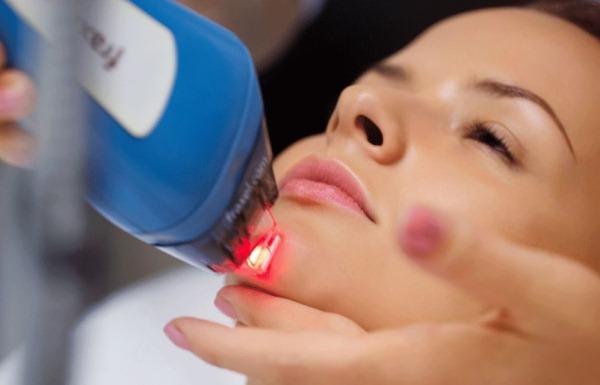 Виды пилингов для лица в косметологии для проблемной кожи, омоложения. Какой лучше