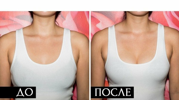 Подтяжка груди имплантами и без. Фото до и после, как делается, цены