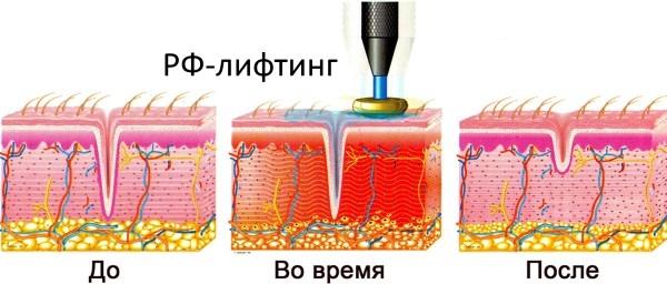 Радиоволновой лифтинг лица. Отзывы, фото до и после, противопоказания