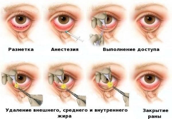 Подтяжка век хирургическим путем и без операции. Круговая блефаропластика, мезонити, лазером, ботокс. Фото, цены