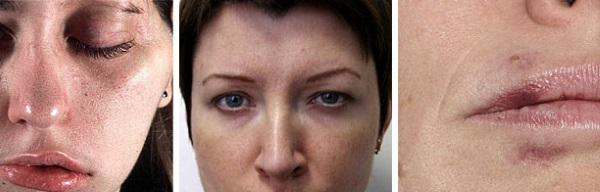 Рефайнекс в косметологии. Эффективность, побочные эффекты применения, отзывы косметологов