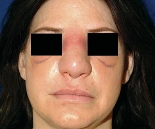 Ринопластика носа: закрытая, открытая, реконструктивная, инъекционная, лазерная. Цена и отзывычё