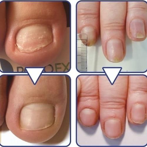 Сыворотка Аркада для ногтей. Как пользоваться, аналоги, отзывы