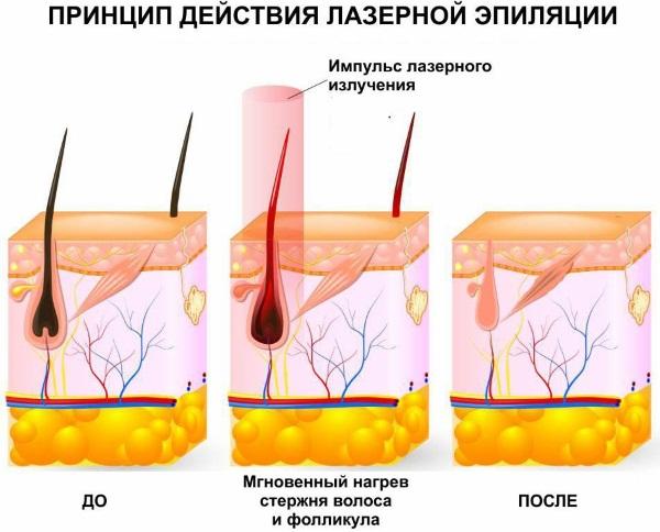 Лазер для лица в косметологии. Виды, фото до и после применения, отзывы