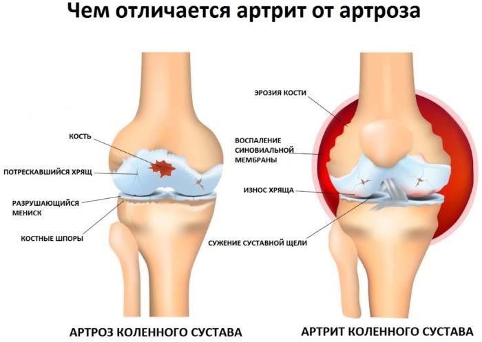 Широчайшая мышца спины у женщин. Строение, функции, упражнения дома, в тренажерном зале