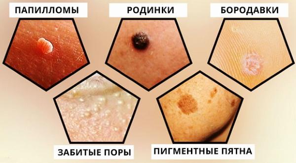Удаление папиллом на лице лазером, азотом, радиоволновым методом, мази из аптеки, народные средства