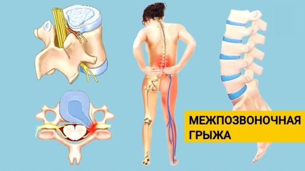 Упражнения на спину для девушек с гантелями, штангой, на турнике в домашних условиях