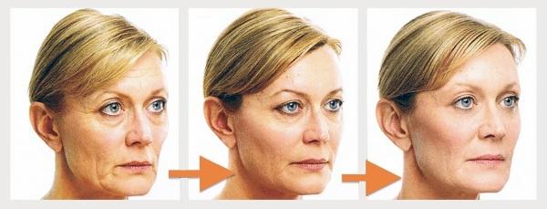Фейслифтинг для лица. Эффективные упражнения, методики против отечности, для подтяжки овала, фото до и после