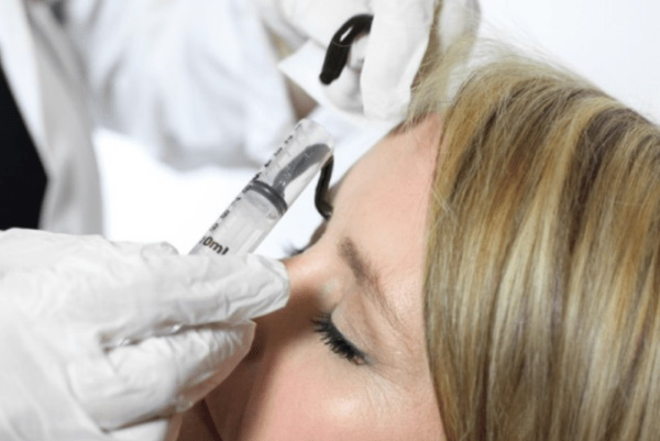 Гирудотерапия в косметологии при варикозе, от целлюлита, растяжек. Обучение, фото до и после, отзывы