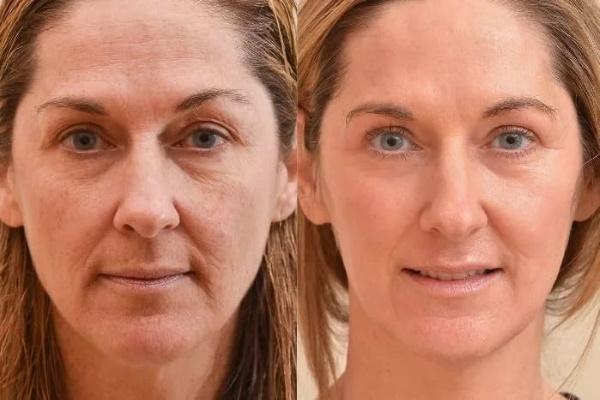 косметология худое лицо до и после