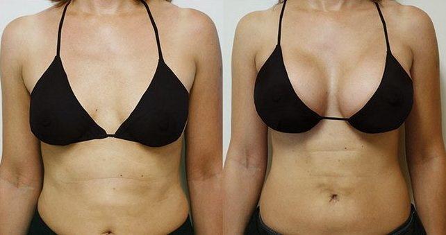 Красивая ли девушка с большой грудью? Стоит ли делать грудь больше, плюсы и минусы